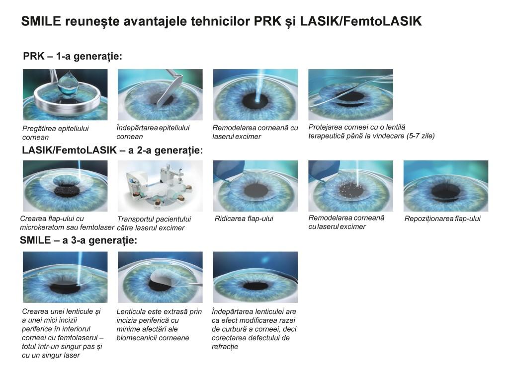 3 generatii chirurgie refractiva