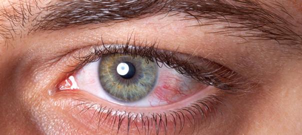 conjunctivita-virala---Ama-Optimex---oftalmologie2