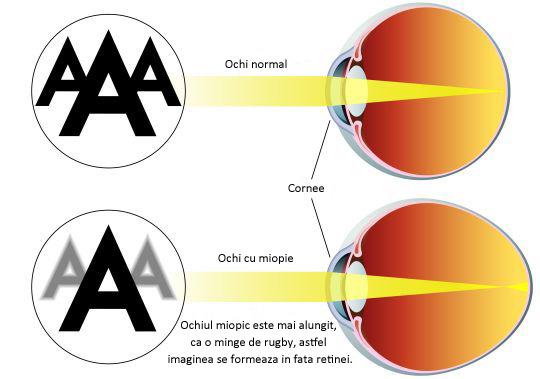miopie noaptea miopie pupile permanent dilatate